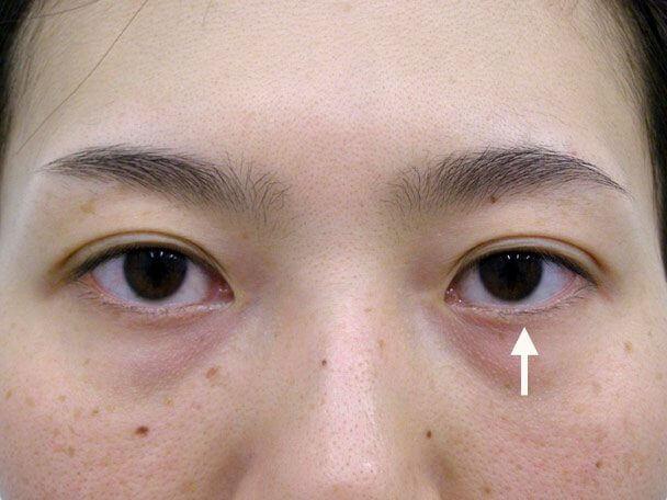No.79 30歳 他院OP後(両側小切開手術後8年)の修正手術(左目を右目に合わせて固定)術後1週間の症例写真