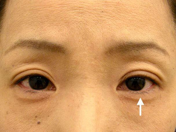 No.84 41歳 二重埋没法(左目のみ下垂修正含む)術後1週間の症例写真