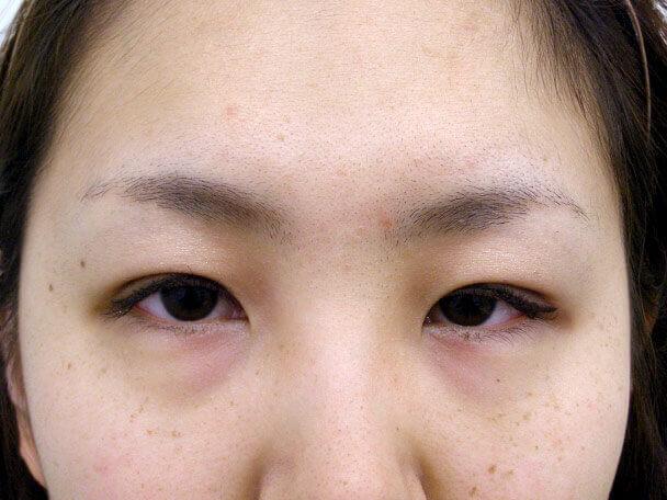 No.92 21歳二重埋没法(末広型・下垂修正)術後4日の症例写真
