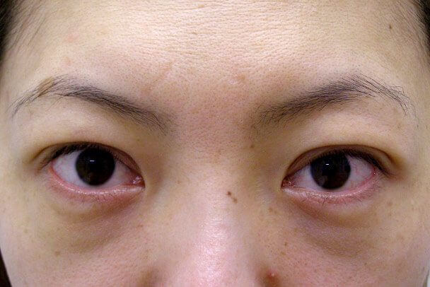 No.93 二重埋没法(末広型・下垂修正)術後30分の症例写真
