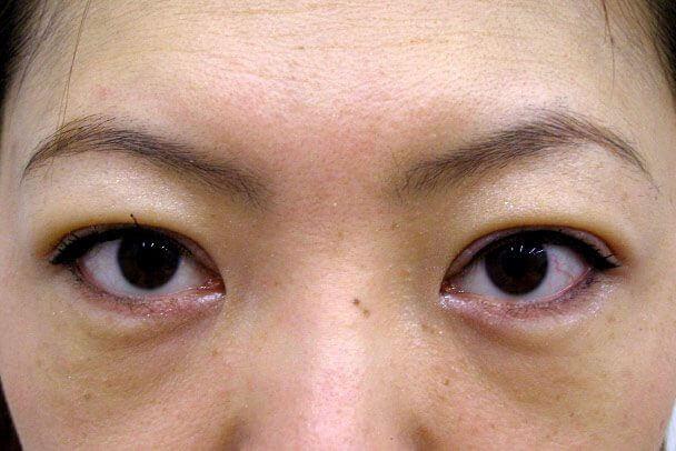 No.93 二重埋没法(末広型・下垂修正)術後8日の症例写真