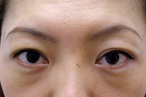 No.93 二重埋没法(末広型・下垂修正)術後1ヶ月の症例写真