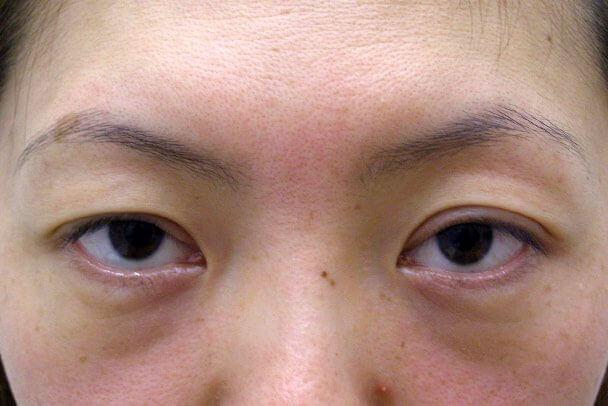 No.93 二重埋没法(末広型・下垂修正)術前 症例写真