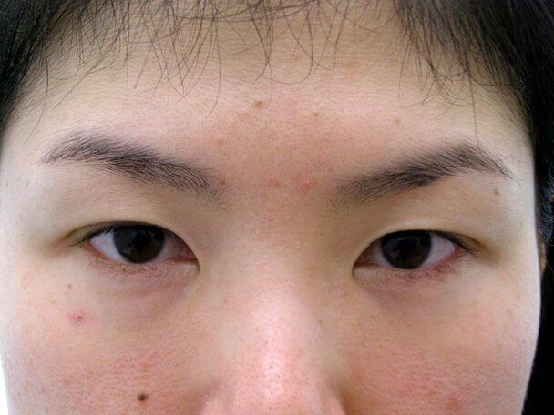 No.97 29歳二重埋没法(幅狭末広型)術前の症例写真