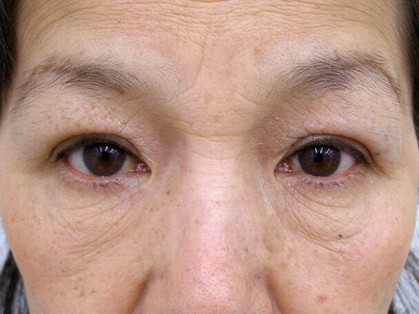 No.98 59歳 二重埋没法(下垂修正) 術後1ヶ月の症例写真