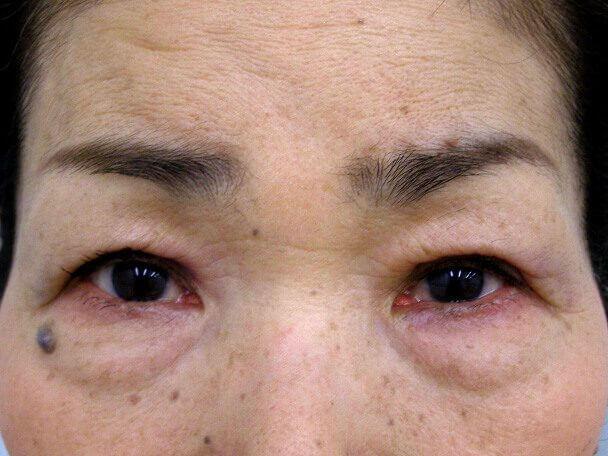 No.99 切らない眼瞼下垂(たるみたくし上げ) 術後4日の症例写真