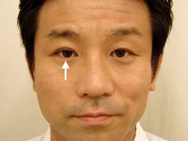 No.119 35歳男性 先天性眼瞼下垂・右目切らない眼瞼下垂 術後2週間の症例写真