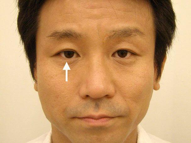 No.119 35歳男性 先天性眼瞼下垂・右目切らない眼瞼下垂 術後1年2ヶ月の症例写真