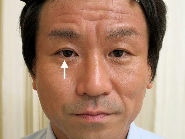 35歳男性 先天性眼瞼下垂・右目切らない眼瞼下垂 術後3年4ヶ月の症例写真