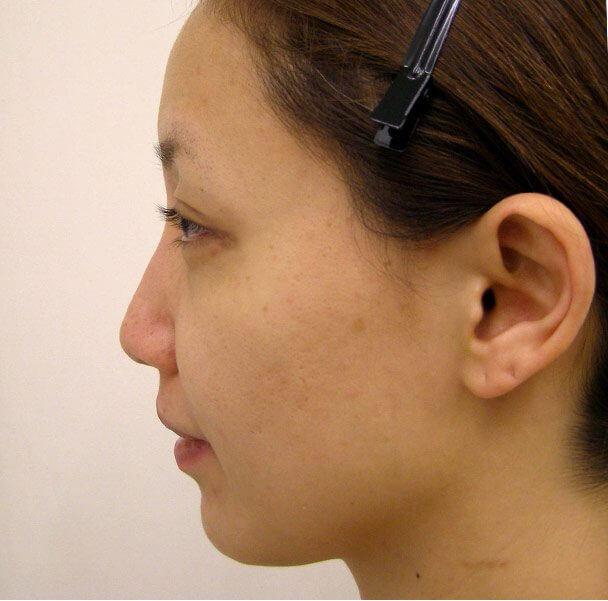 No.5E 鼻尖軟骨形成+耳介軟骨移植(オープンライノプラスティ)横 術前 症例写真