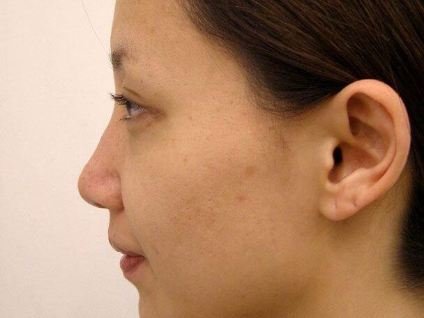 No.5E 鼻尖軟骨形成+耳介軟骨移植(オープンライノプラスティ)横 術後3週間の症例写真