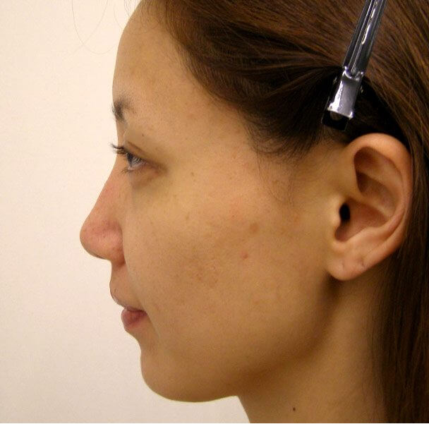 No.5E 鼻尖軟骨形成+耳介軟骨移植(オープンライノプラスティ)横 術後2ヶ月の症例写真