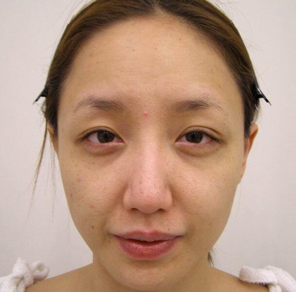 No.5E 鼻尖軟骨形成+耳介軟骨移植(オープンライノプラスティ)顔全体 術前 症例写真