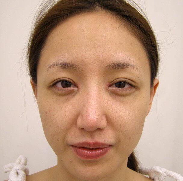 No.5E 鼻尖軟骨形成+耳介軟骨移植(オープンライノプラスティ)顔全体 術後3週間の症例写真