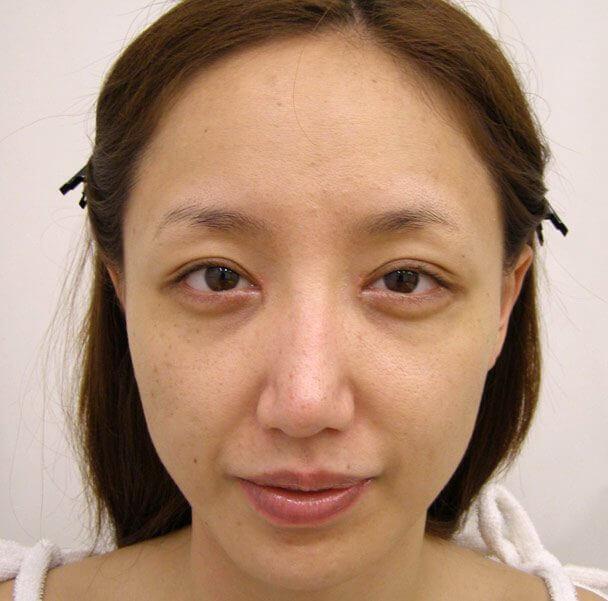 No.5E 鼻尖軟骨形成+耳介軟骨移植(オープンライノプラスティ)顔全体 術後2ヶ月の症例写真