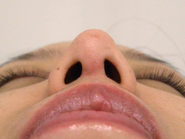 No.5E 鼻尖軟骨形成+耳介軟骨移植(オープンライノプラスティ)術後3週間の症例写真
