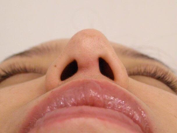 No.5E 鼻尖軟骨形成+耳介軟骨移植(オープンライノプラスティ)術後2ヶ月の症例写真
