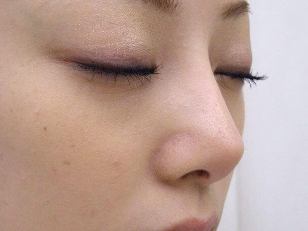 No.6F 隆鼻+鼻尖軟骨形成+左耳珠・耳介軟骨移植(オープンライノプラスティ)横 術後6ヶ月の症例写真