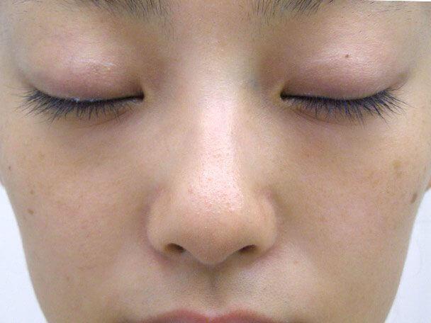 No.6F 隆鼻+鼻尖軟骨形成+左耳珠・耳介軟骨移植(オープンライノプラスティ)正面 術前 症例写真