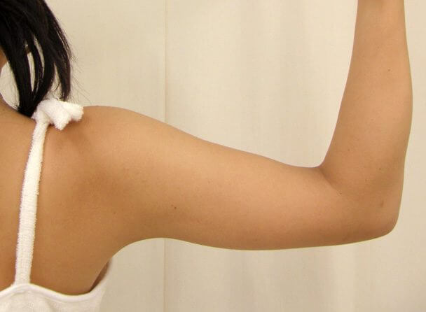 No.3 上腕(二の腕)真崎式プチ・リポ術後1ヶ月の症例写真