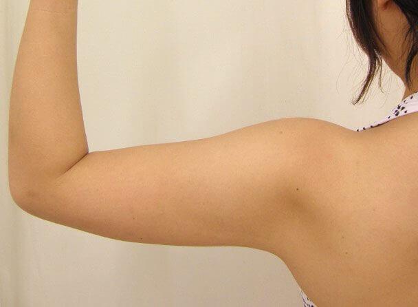 No.4上腕(二の腕)真崎式プチ・リポ術前 症例写真