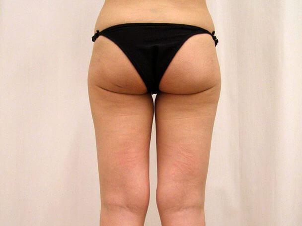 No.6臀部大腿外側 真崎式プチリポ 術前 症例写真