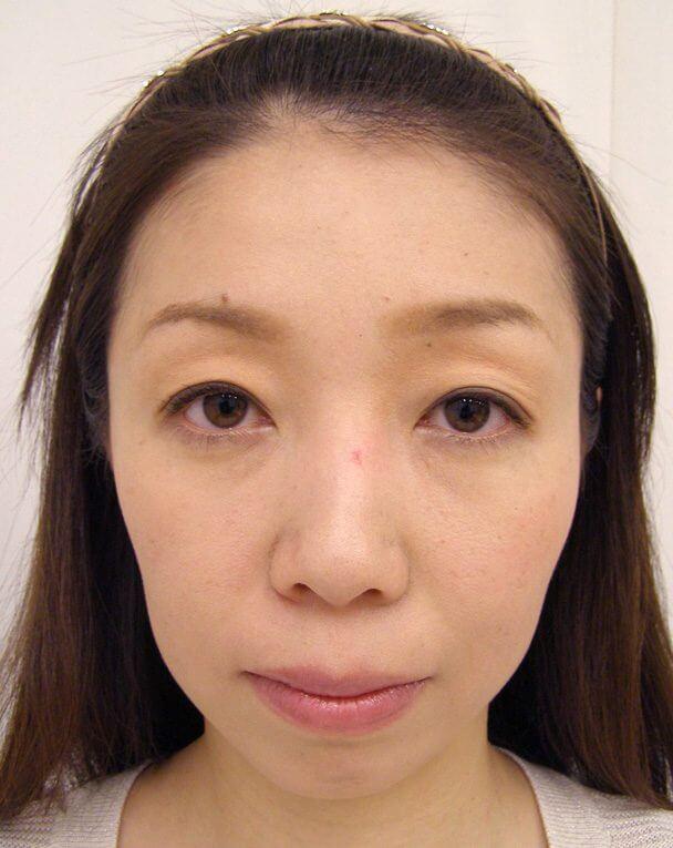 No.91目の下クマ治療 術後2年の症例写真