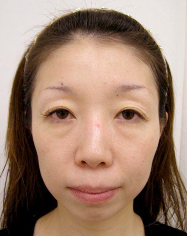No.91目の下クマ治療 術前 症例写真