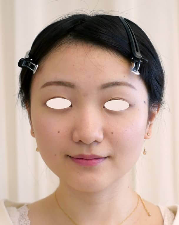 No.109111 24歳 エラボトックス+鼻のヒアルロン酸 サムネイル術前 顔全体