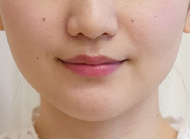 No.109111 24歳 エラボトックス+鼻のヒアルロン酸 サムネイル術後1ヶ月 輪郭アップ