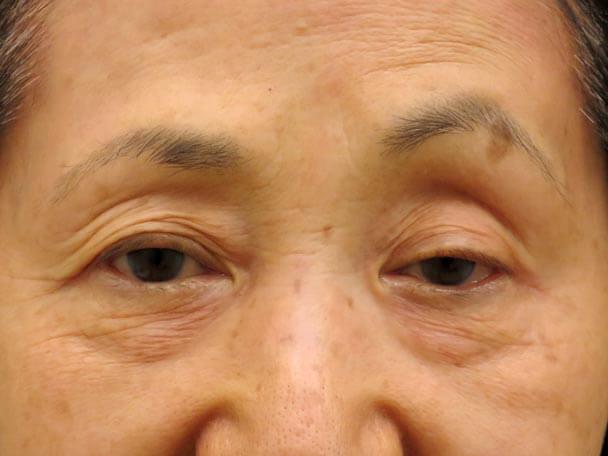 No.24 76歳 切らない眼瞼下垂術前写真