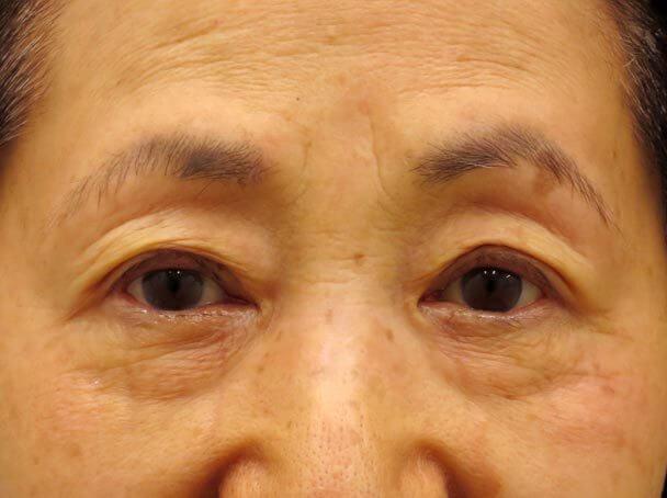 No.24 76歳 切らない眼瞼下垂術後30分写真