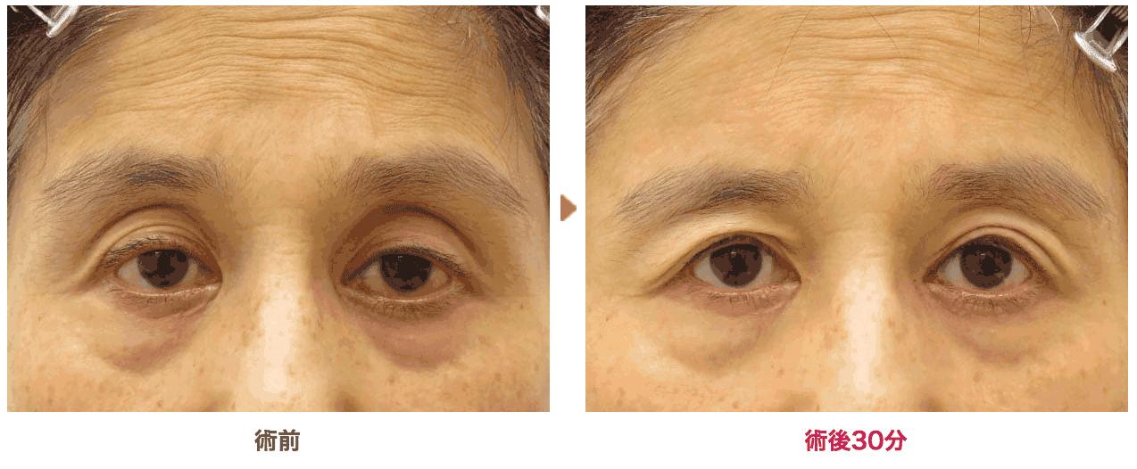 62歳 切らない眼瞼下垂の症例写真を公開しました