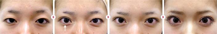 24歳(女性)二重埋没法幅広平行型2点固定の症例写真