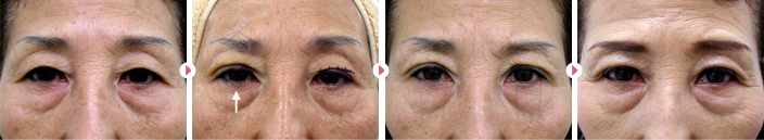 67歳(女性)切らない眼瞼下垂の症例写真