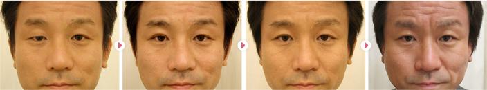 先天性眼瞼下垂モニター患者さんの術後の症例写真です