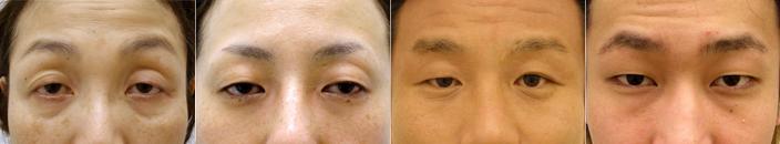 眼瞼下垂の患者様の術前写真一覧
