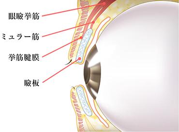 眼瞼下垂切開法