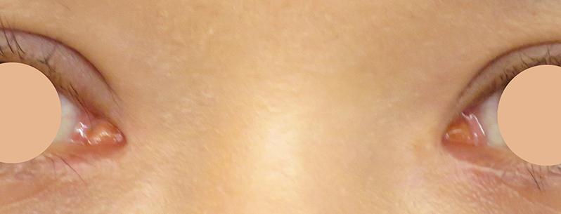 目頭切開 術後2ヶ月写真