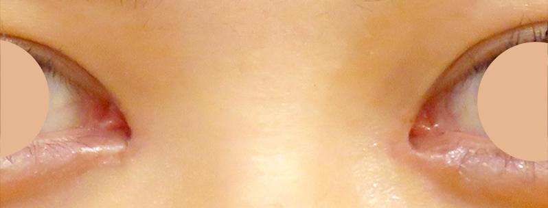 目頭切開 術後1ヶ月写真