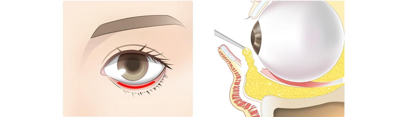 経結膜脱脂術