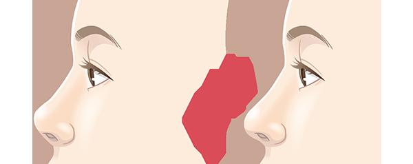 鼻中隔延長術のビフォーアフターイメージ