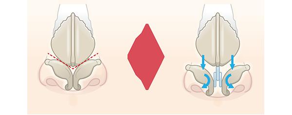 鼻中隔延長術の構造について