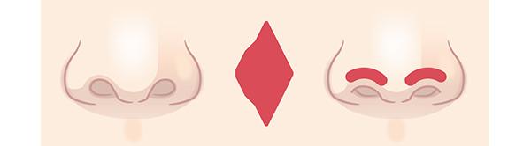 鼻孔縁下降術の施術方法