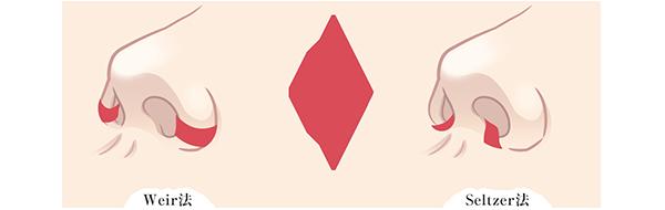 鼻翼縮小術の施術方法