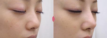 隆鼻+鼻尖軟骨形成+左耳珠・耳介軟骨移植(オープンライノプラスティ)
