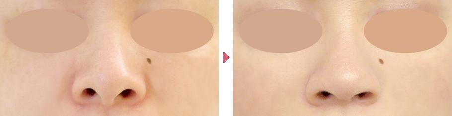鼻孔縁下降術+鼻中隔延長(正面から鼻の穴が目立つ方の症例写真)