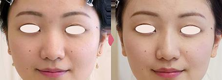 鼻のヒアルロン酸注入症例写真