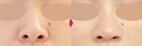 ハンプ(わし鼻・かぎ鼻)修正の症例写真