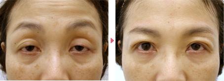 54歳(女性)重度のコンタクトレンズ性眼瞼下垂の症例写真
